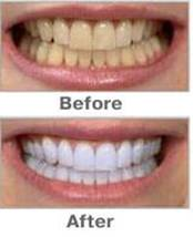 Teeth whitening home kit